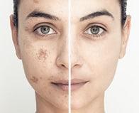 רפואת עור