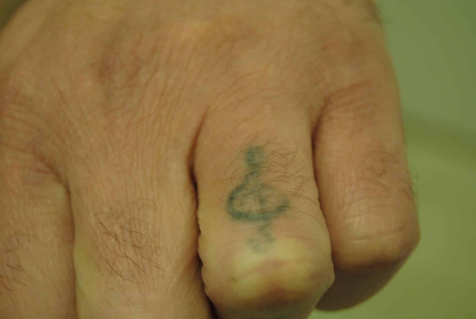 הסרת קעקוע ביד