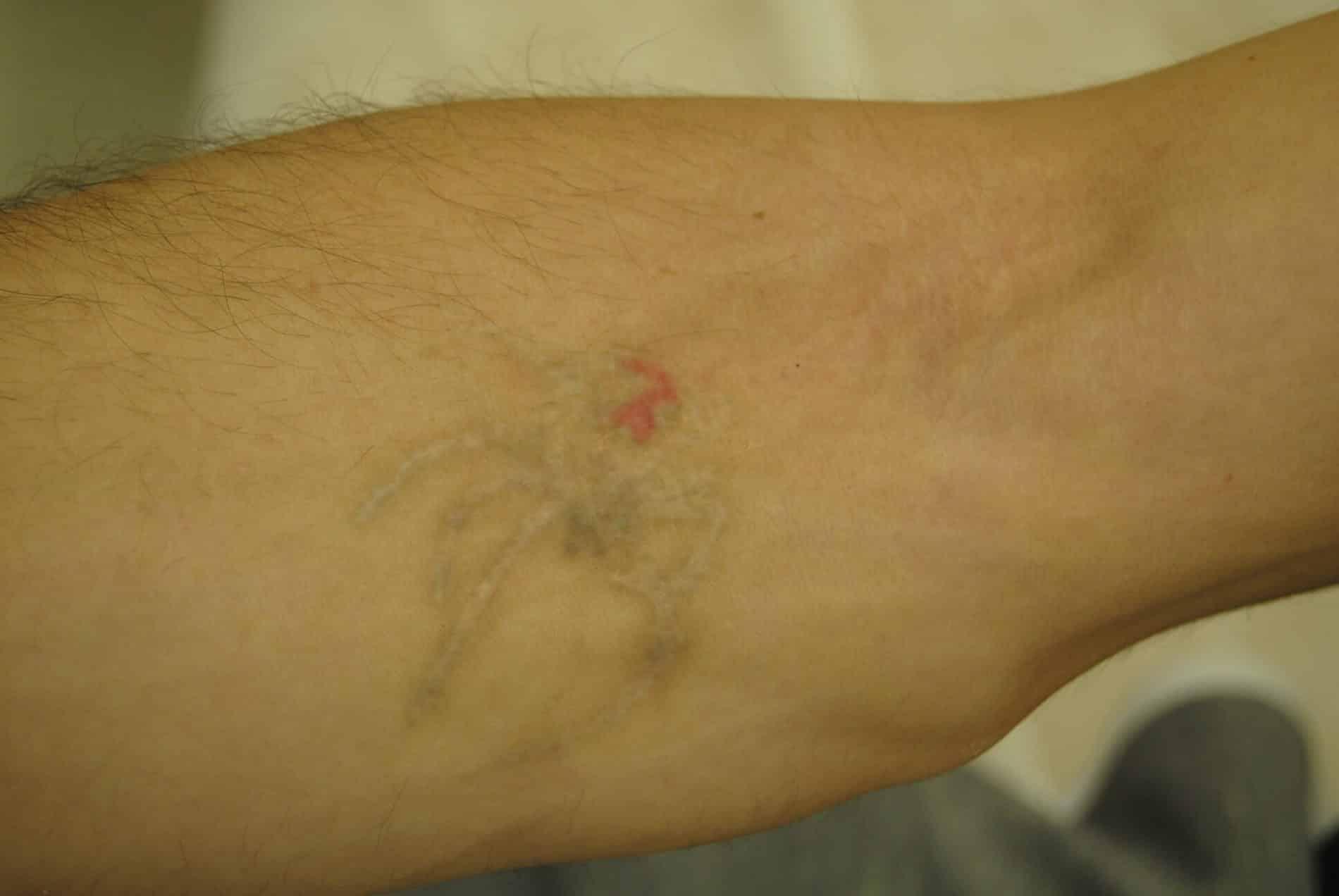 הסרת קעקוע בזרוע