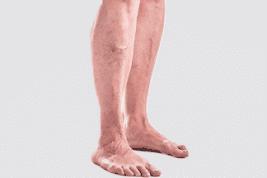 ורידים בולטים ברגליים